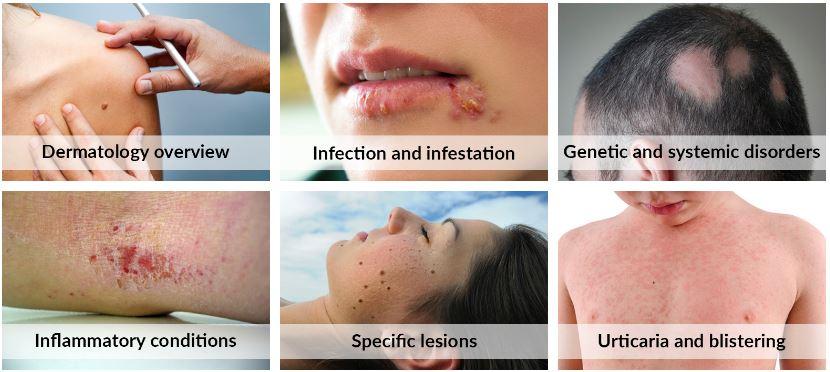 Dermatology%20menu.JPG