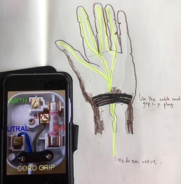 Image 1 - plug wrist
