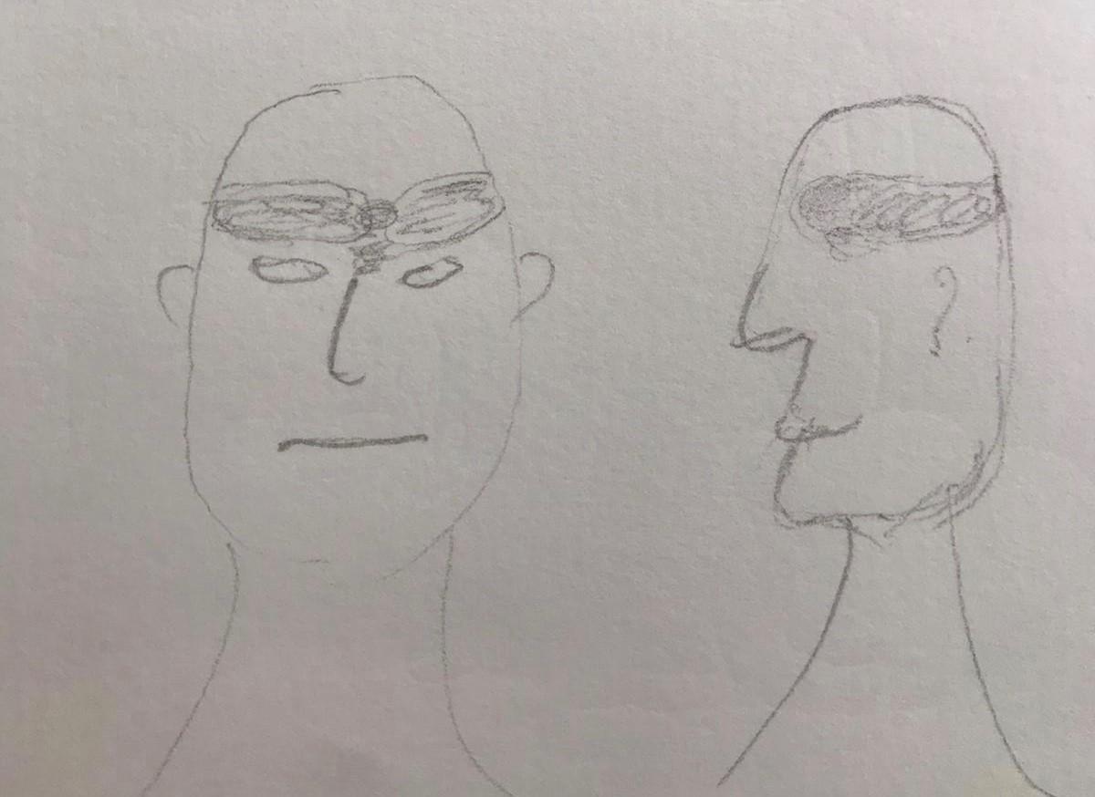 Image 3 - cluster headache